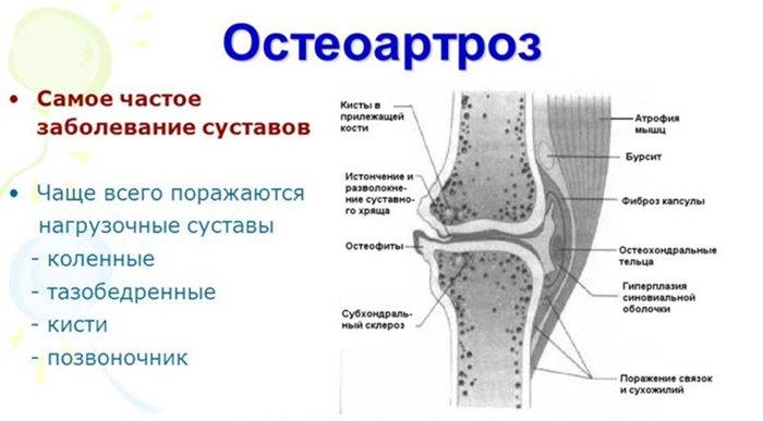 osteoartroza protocol