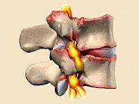 artroza kręgosłupa leczenie