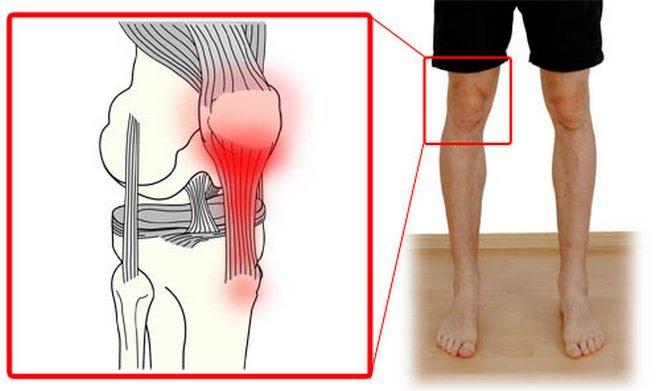 ízületi fájdalom stádium után)