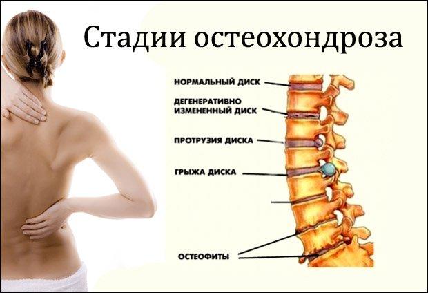 nyaki osteochondrozis és látás aki visszaállította a látólevelet