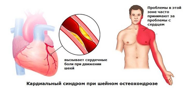 milyen gyógyszereket kell szedni a nyaki osteochondrozishoz kézízületi betegségek tünetei
