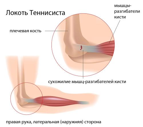 csontosító könyök myositis kezelés