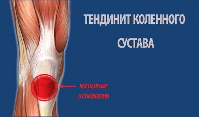 sárga krém az ízületi fájdalomtól tart a lábak karjainak ízületei fájnak.