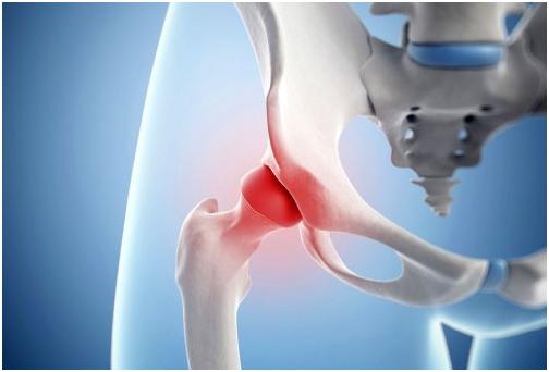 mi a teendő ha a sarokízület fáj mi a teendő ha a csípőízület fájdalma van