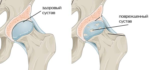 coxarthrosis kezelési rend)