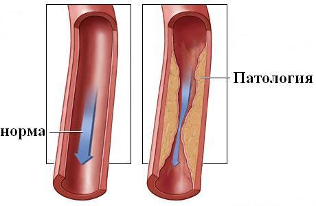 intramuszkuláris injekciók magas vérnyomás esetén